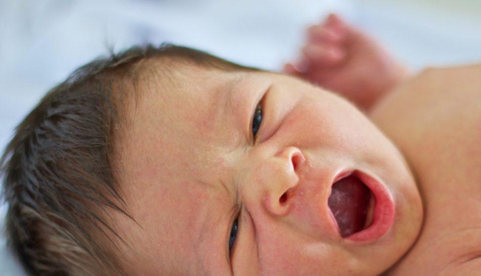 Bambino con i difetti tipici della pelle del neonato