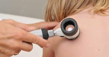 Visita dei nei a una bambina con un dermatoscopio