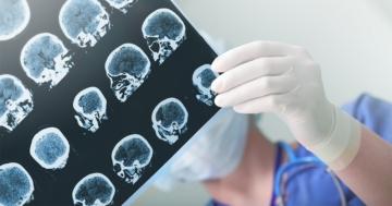 Lastra di un cranio umano