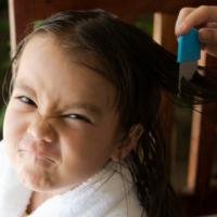 Come eliminare i pidocchi? Trattamenti e rimedi efficaci