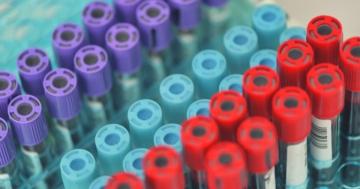 Provette di sangue per il test del DNA fetale (NIPT)