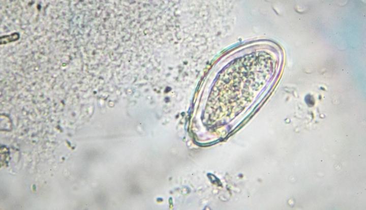 Uova di ossiuri al microscopio