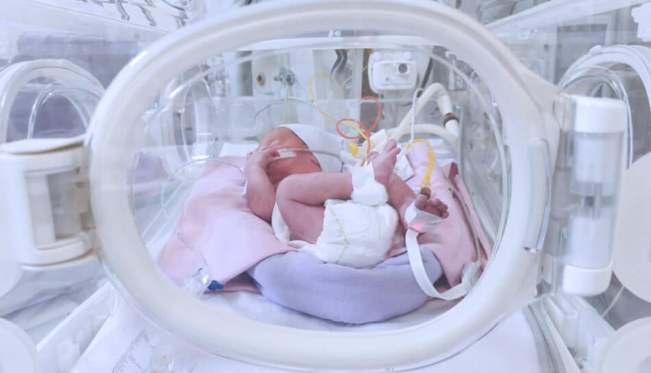 neonato nato prematuro in incubatrice